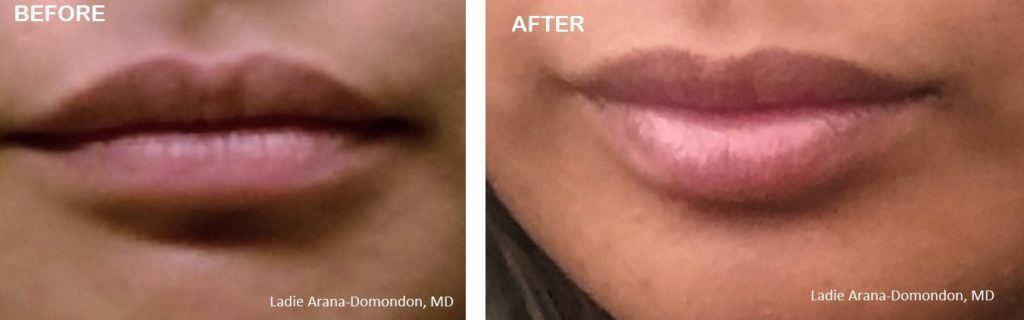 before and after Volbella Juvederm lip injections - Concordia Star Med Aesthetics