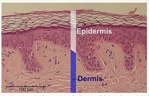 diagram of skin's epidermis and dermis - Concordia Star Medical Aesthetics